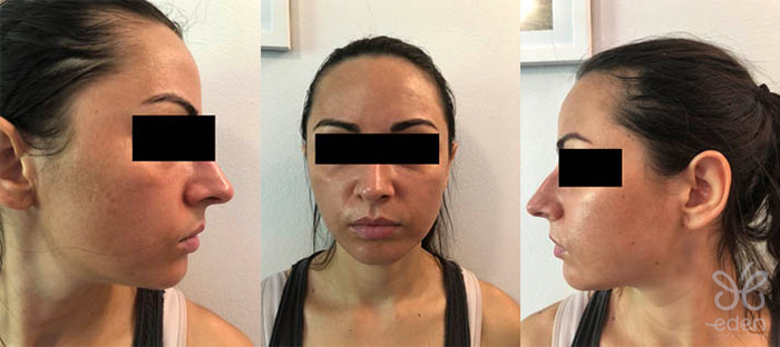Cosmelan treatment 7 days after