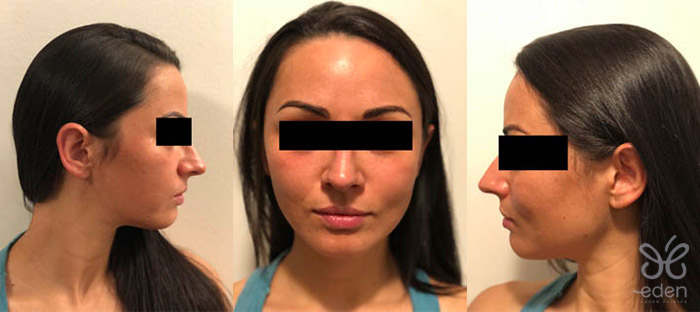 Cosmelan treatment 8 days after