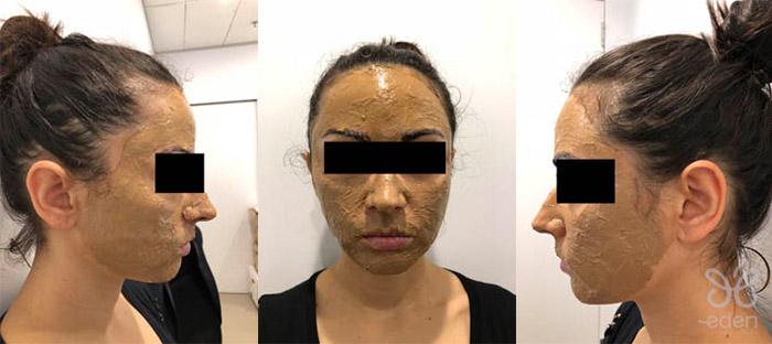 Cosmelan treatment application