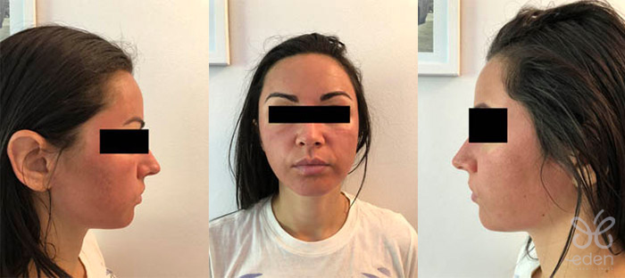 Cosmelan treatment 1 day after