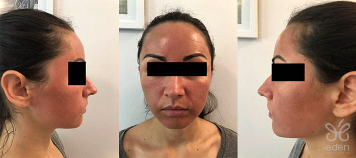 Cosmelan treatment 2 days after