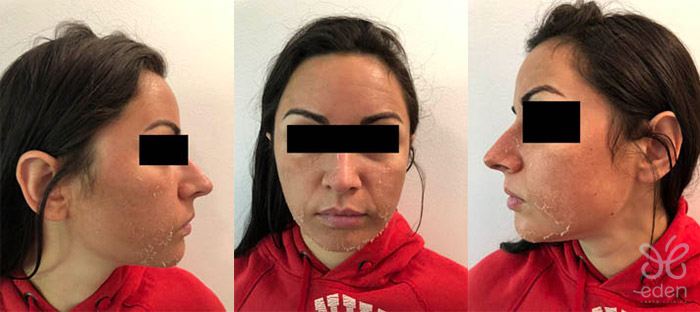 Cosmelan treatment 3 days after