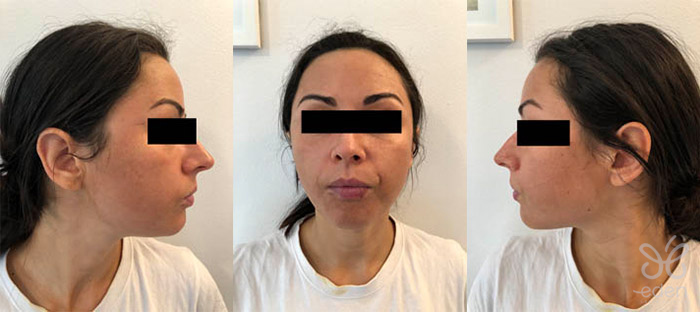 Cosmelan treatment 4 days after
