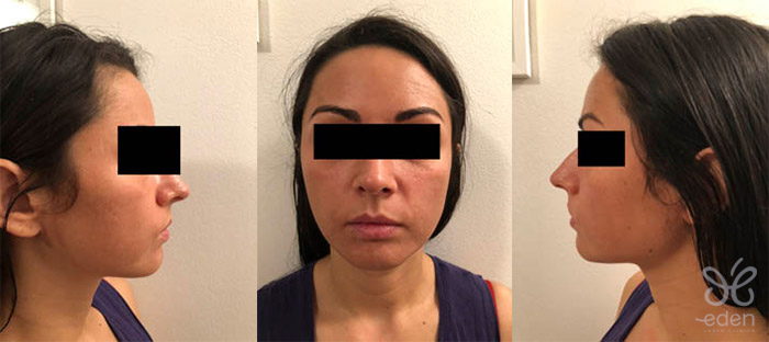 Cosmelan treatment 5 days after