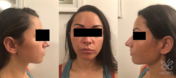 Cosmelan treatment 6 days after