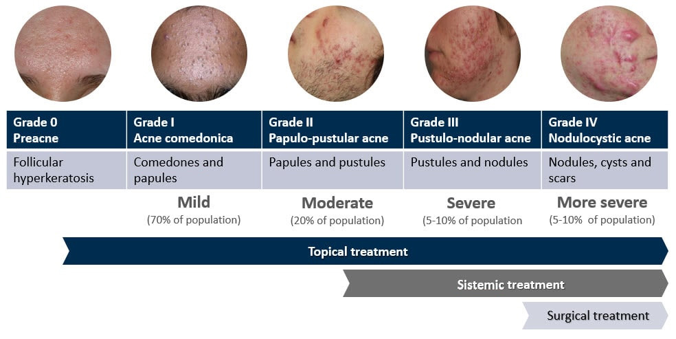 Acne classification - lesion type
