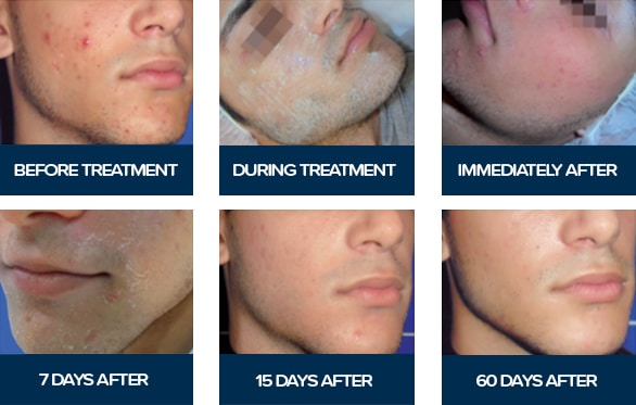 Acnelan acne treatment before-&-after photos