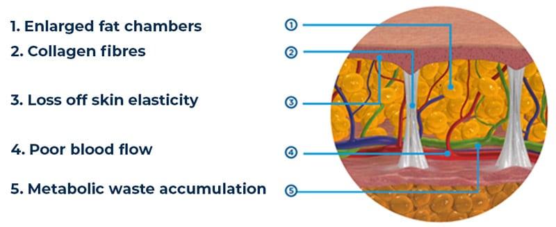 EMTONE addresses all 5 causes of cellulite loose skin