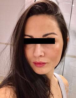 Cosmelan treatment 12 months after