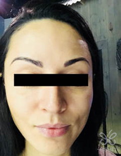 Cosmelan treatment 2 months after